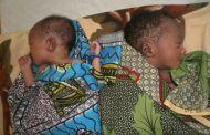 La sequía, la guerra y la desnutrición provocaron un aumento significativo en la adquisición de suministros para la infancia en 2017