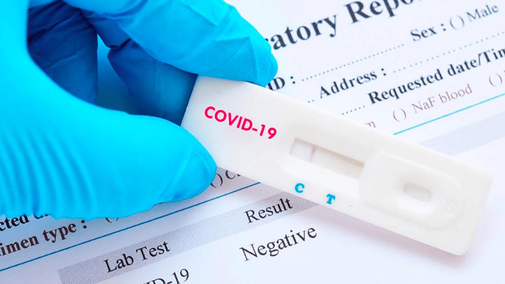 OCU alerta contra la venta on line de pruebas de autodiagnóstico de coronavirus