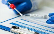 Castilla-La Mancha registra 393 nuevos casos por infección de coronavirus