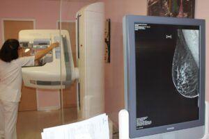 La Comisión Europea concede la designación de 'buena práctica' al programa de cribado de cáncer de mama del Gobierno de Castilla-La Mancha en Toledo